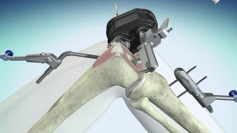 robot asszisztalt terdprotezis mutet